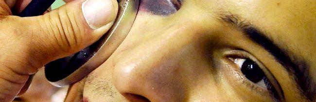 Які засоби найкраще допомагають швидко прибрати синець під оком після удару