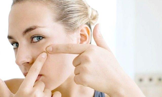 Відвідайте дерматолога, який допоможе виявити причину виникнення прищів після пологів