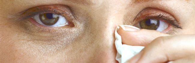 Причини і лікування алергії на століттях навколо очей народними засобами