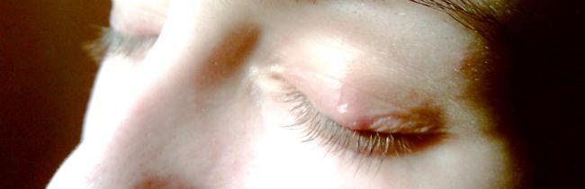 Причини і лікування білого висипання на столітті очі