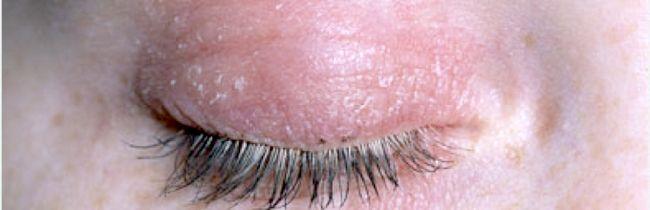 Причини і лікування почервоніння, лущення і свербіння шкіри навколо очей