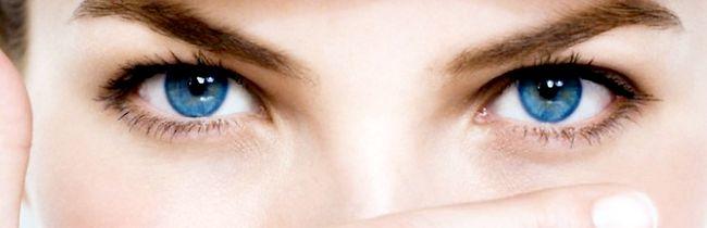 Причини появи білих точок під очима і методи їх усунення
