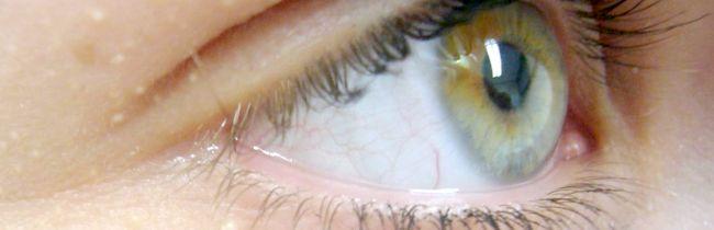 Причини появи і видалення жировика на оці лазером