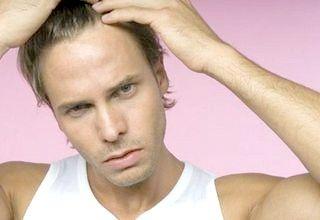 чому у чоловіків випадає волосся